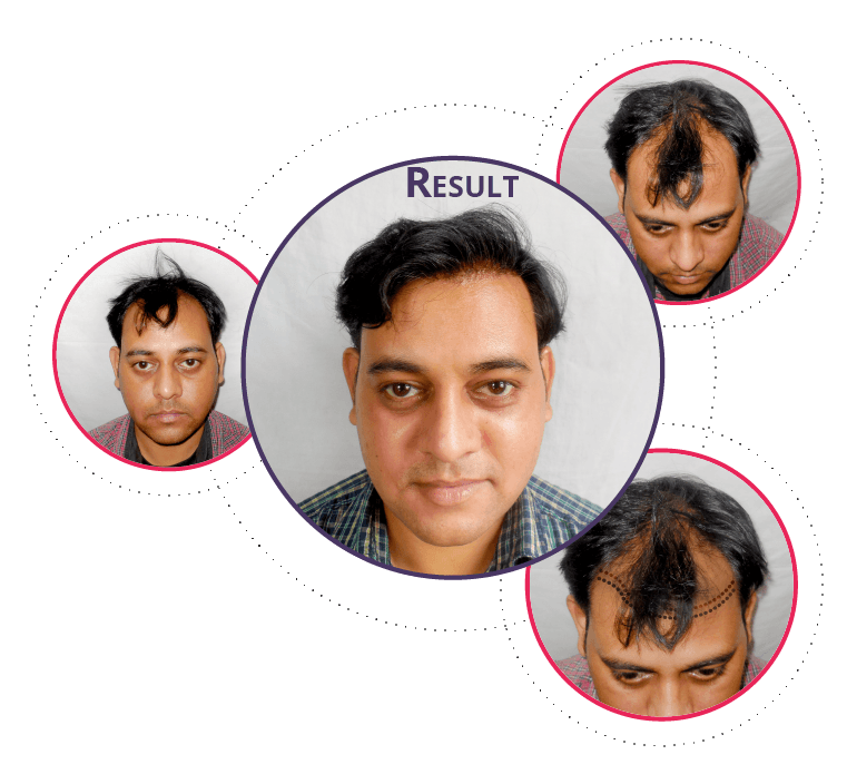 Best Hair Transplant In Lucknow