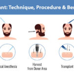 Hair Transplant:  Technique, Procedure, And Benefits