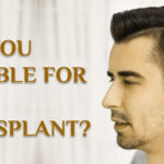 Are You Eligible for Hair Transplant